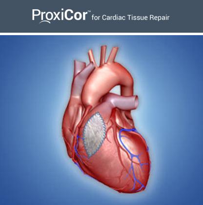 Aziyo Proxicor cardiac tissue